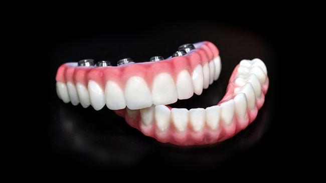 Teeth Tomorrow Implant-Supported Full-Arch Bridges
