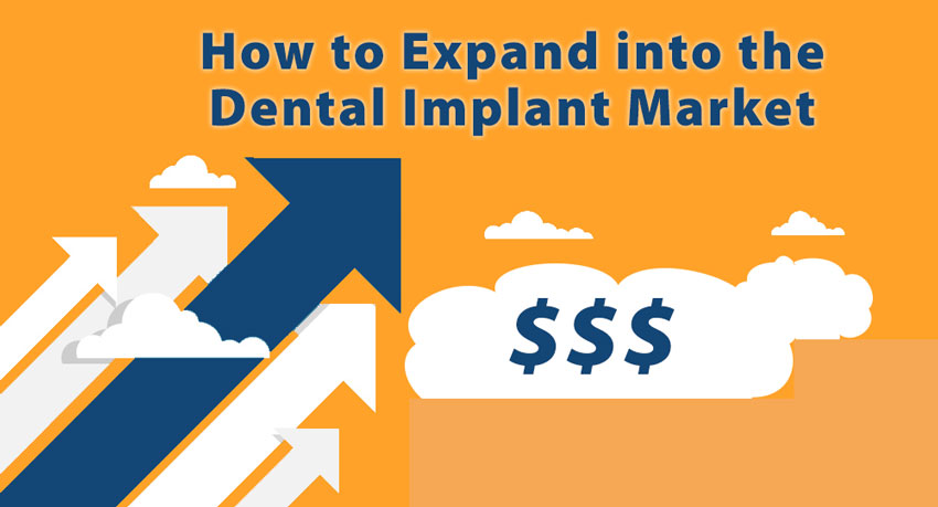 How to Expand into the Dental Implant Market